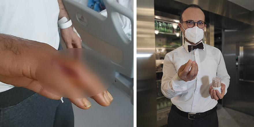 İsrafil Türkmen'in eline kürdan battı! Hayatı kabusa döndü