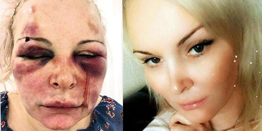 Otel odasında 2 günlük işkence! Otteva Elvira'nın anlattıkları kan dondurdu