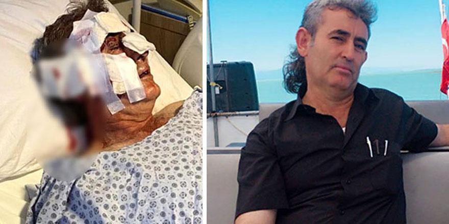 Kafesinden kaçan maymun, otel personelini yüzünden yaraladı