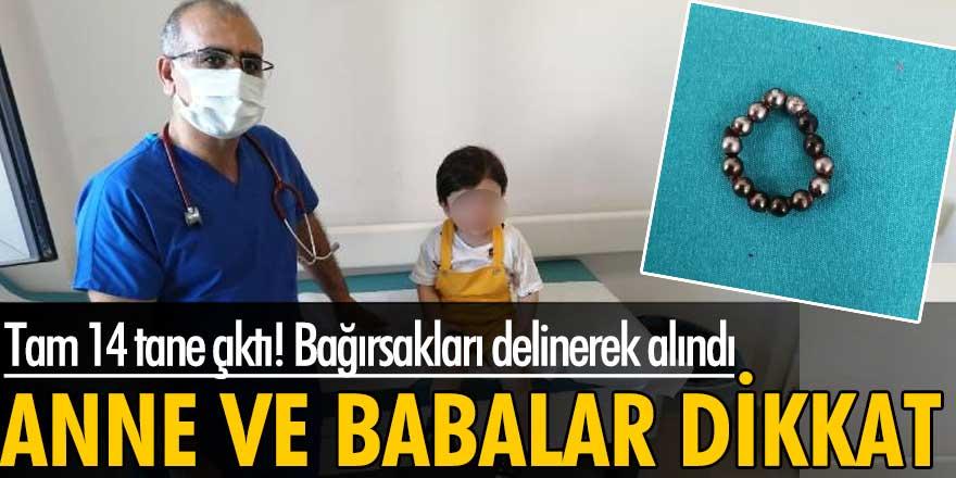 Batman'da 20 aylık Ahmet Arif Ataş'ın yuttuğu 14 mıknatıs bağırsakları delinerek alındı