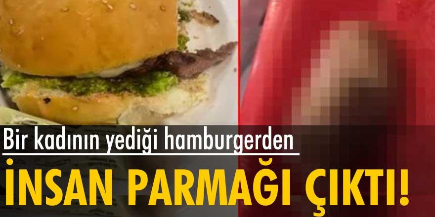 Yediği hamburgerden insan parmağı çıktı
